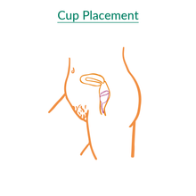 Load image into Gallery viewer, Kind Cup menstrual cup placement diagram