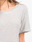 Detail of Striped Tunic Tee