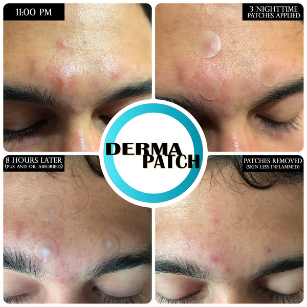 How Acne patch can be an Effective Treatment for Skin