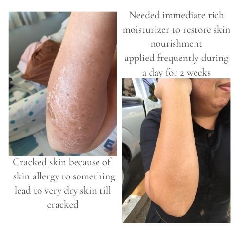 Cracked skin need immediate rich moisturizer