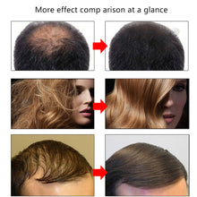 Load image into Gallery viewer, Hair Growth Oil Restoration Growing Serum