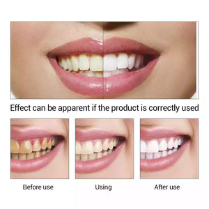TEETH WHITENING ESSENCE- BUY 1 TAKE 1 FOR FREE!