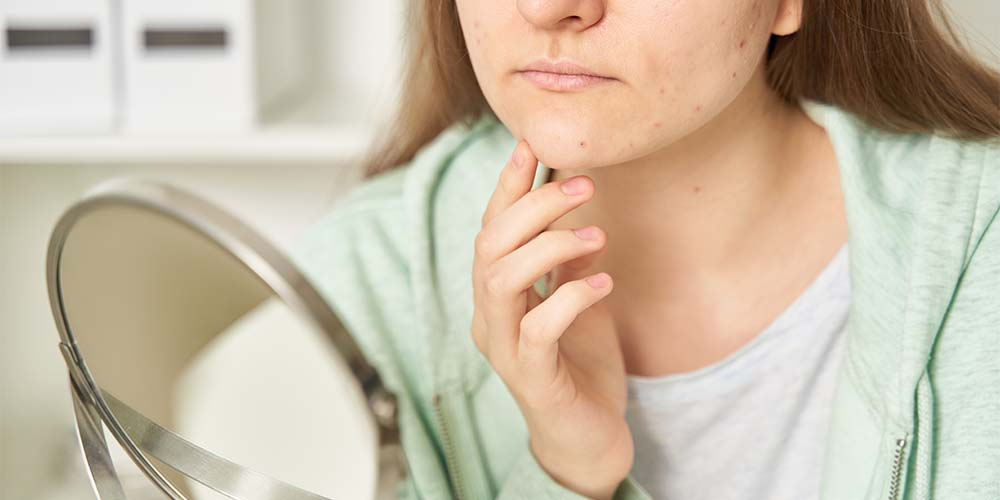 young woman looking at her pimples on the mirror