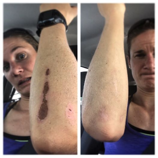 Katie Zaferes injury