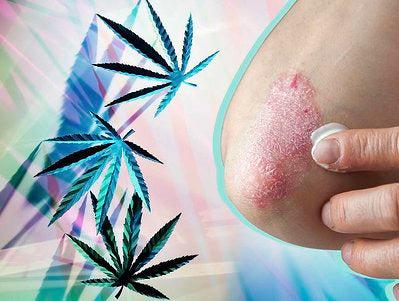 Health.com: Can CBD Relieve Psoriasis Symptoms? Here's What Doctors Are Saying