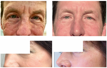 Load image into Gallery viewer, BioVer-X Wrinkle Repair - 3 Step Routine