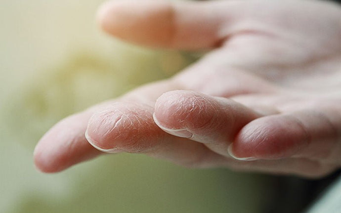 Hand Sanitizer: Why its' harmful & how Marula Oil can help