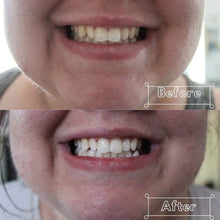 Load image into Gallery viewer, L.E.D Teeth Whitening Service