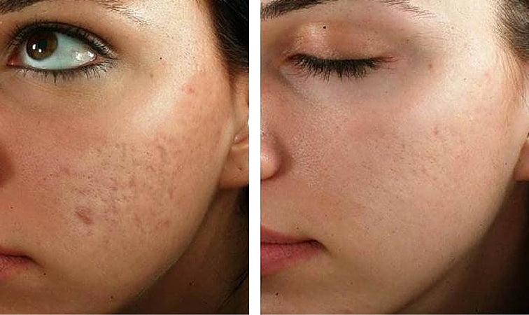 Microneedling Cosmetic Treatment