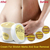#1 Stretch Mark Scar Removal Cream