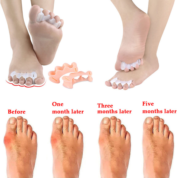 1Pair bunion corrector Relief Protector bunion Toe Straightener Natural Treat Pain hallux valgus Toes Joint Toe Separators