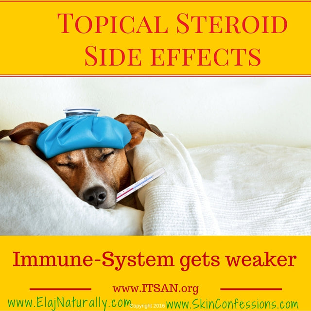 Topical Steroid Side Effects on Immune System