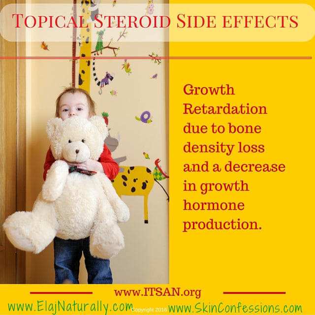 Topical Steroid Side Effects Growth Retardation