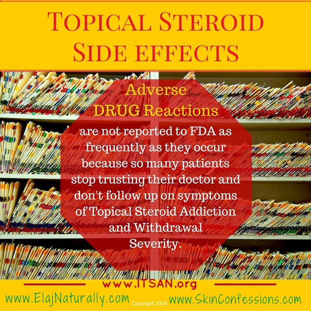 Topical Steroid Side Effects Adverse Drug Reactions