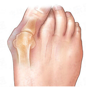 Bunion Exerciser