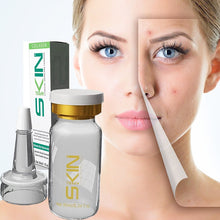 Load image into Gallery viewer, Skinapeel Ultimate Skin Rejuvenation Collection 10ml/0.34 fl oz - 11 Options!!