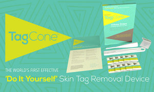 TagCone Original Skin Tag Removal Device
