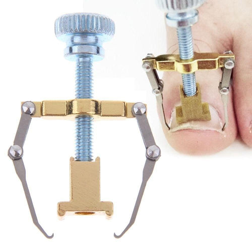 Ingrown Toe Nail Corrector Clamp