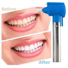 Load image into Gallery viewer, Luma Smile - Teeth Whitening Polish Device