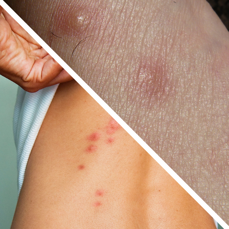 Bed Bug Bites Vs Spider Bites How To Differentiate The Two Bbs