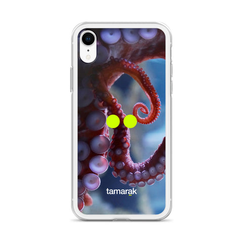 9 brains, 3 hearts | iPhone case