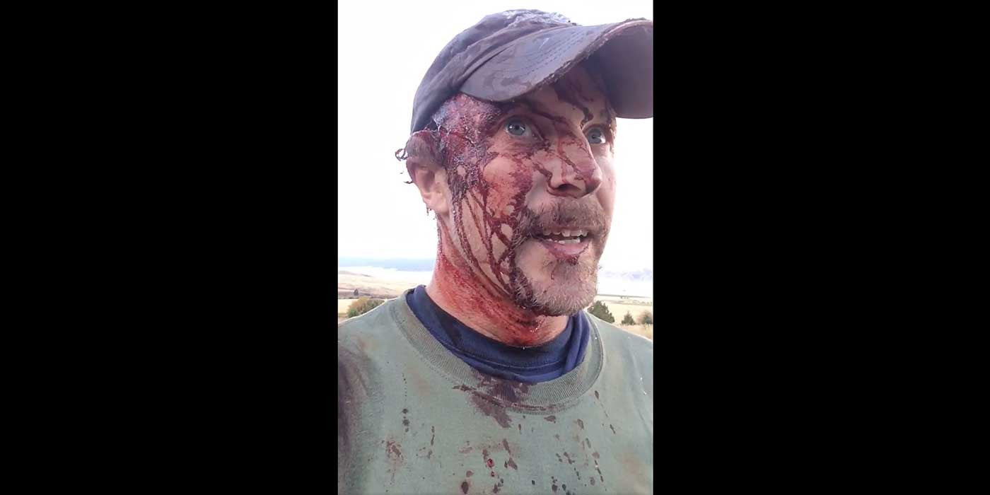 VIDEO: Montana man survives violent grizzly bear attack (GRAPHIC)