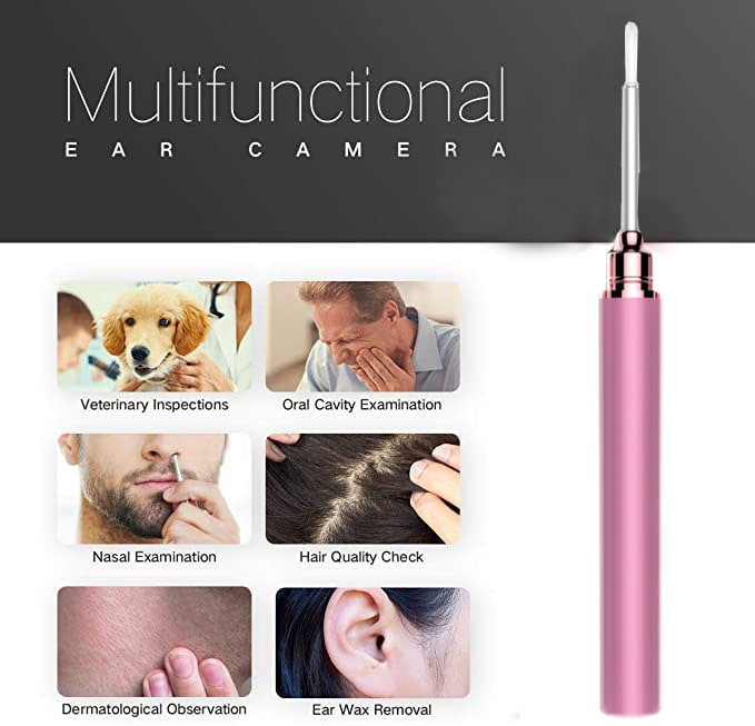 Smart Visual Earwax Remover | Ear Cleaning Endoscope | Ear Wax Cleaner With Camera