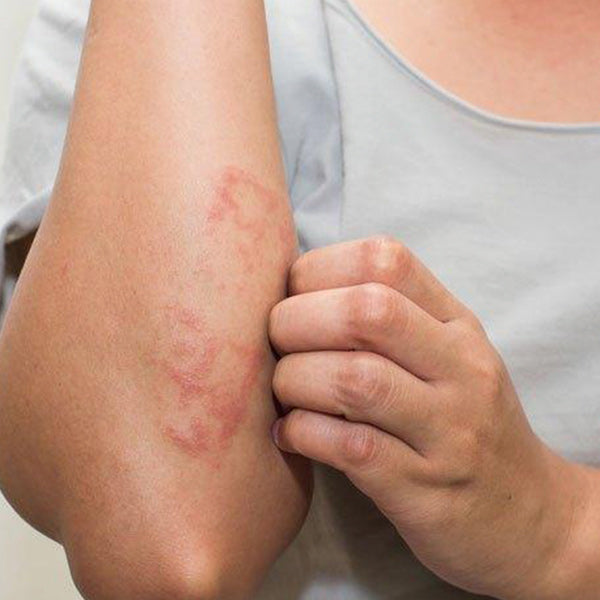 Atopic Dermatitis- What is it and how to treat it