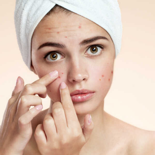 5 Triggers that could be making your Acne Worse