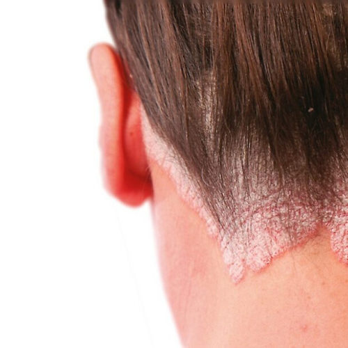 Dry Scalp? You May have Scalp Psoriasis