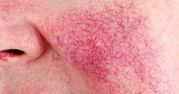 What Could be Triggering your Rosacea?