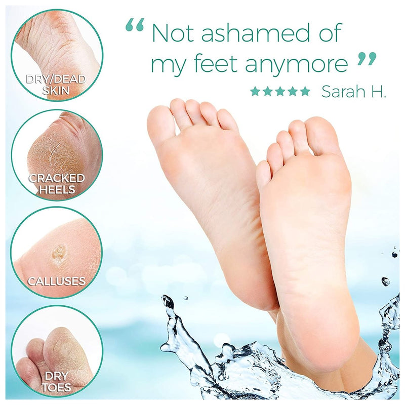 Foot Peel Mask For Cracked Heels, Dead Skin & Calluses
