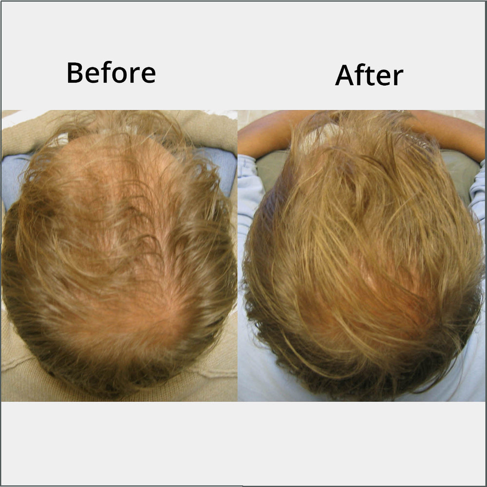 Revivogen MD Scalp Therapy