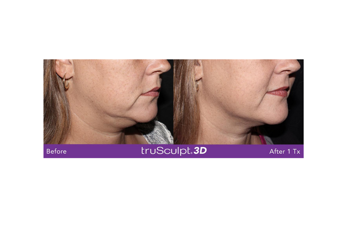 TruSculpt 3D 1Hour Skin Tightening