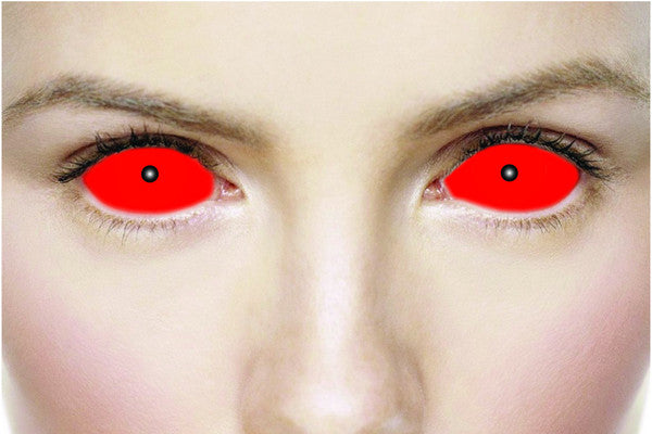 Cat Eye Sclera