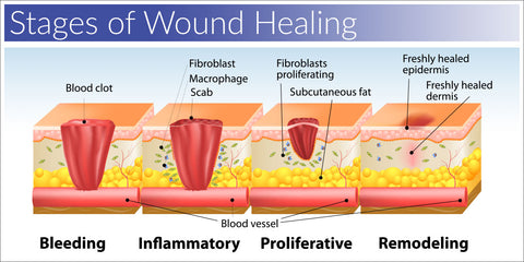 Wound healing stages