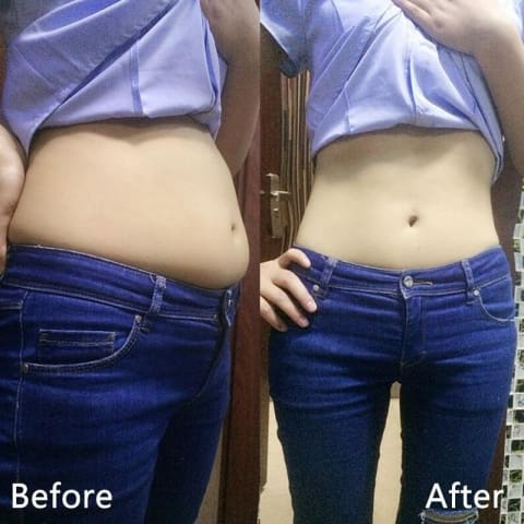 Wonder Belly Slimming Patch