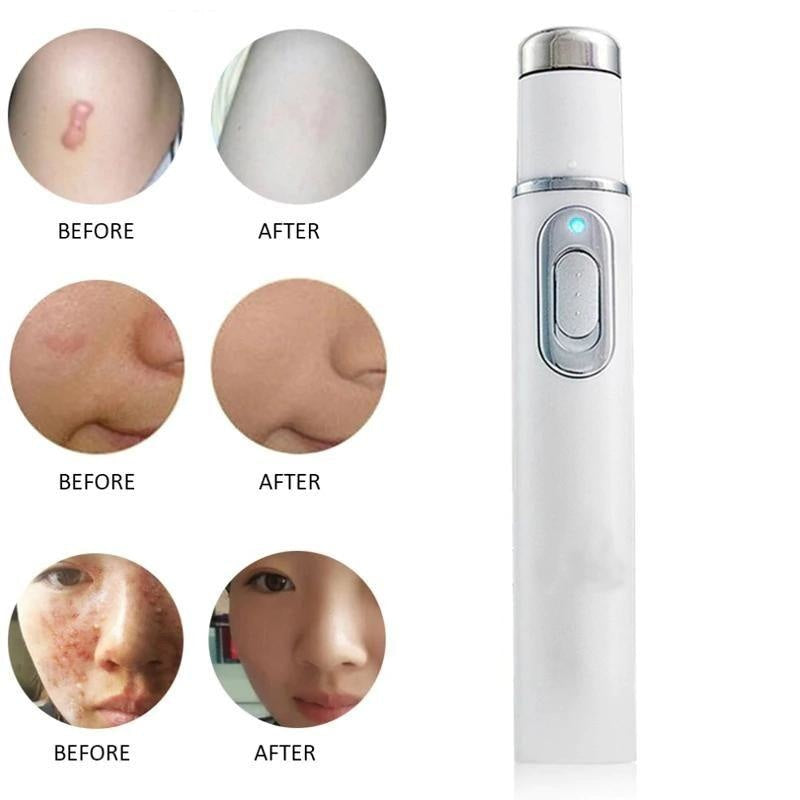 Portable Laser Scrub and Wrinkle Removal Pen NAcloset