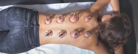 6 Benefits Of Cupping Therapy