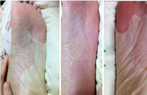 Image of Foot Peeling Exfoliating Socks - Happy Trends Outlet