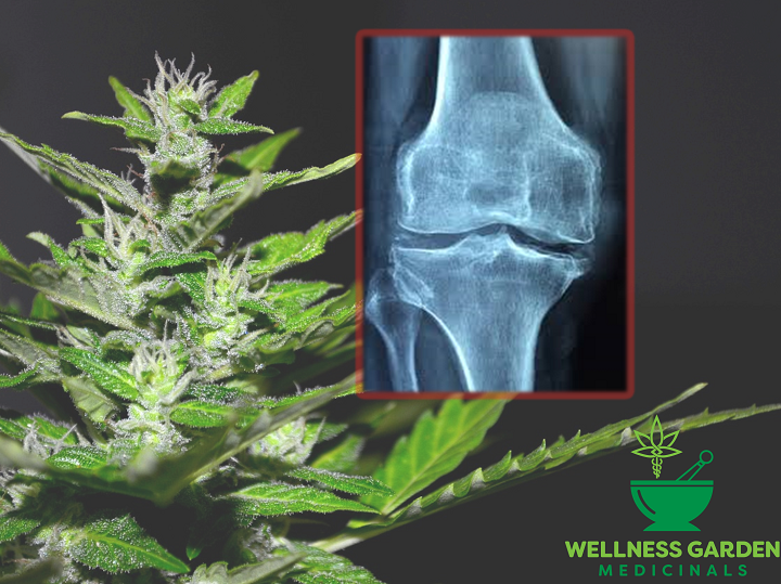 CBD for Natural Muscle & Joint Pain Relief