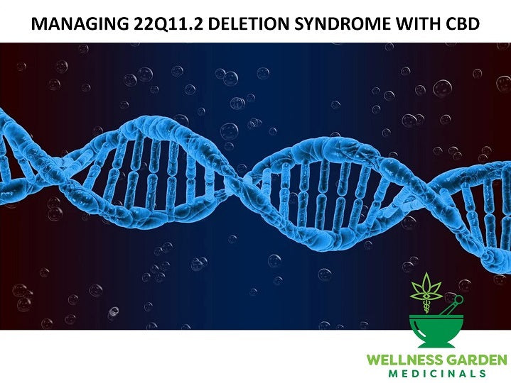 CBD for DiGeorge syndrome: a guide to managing 22q11.2 deletion syndrome symptoms with CBD