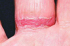 Wedding Ring Dermatitis can cause red, scaly welts.