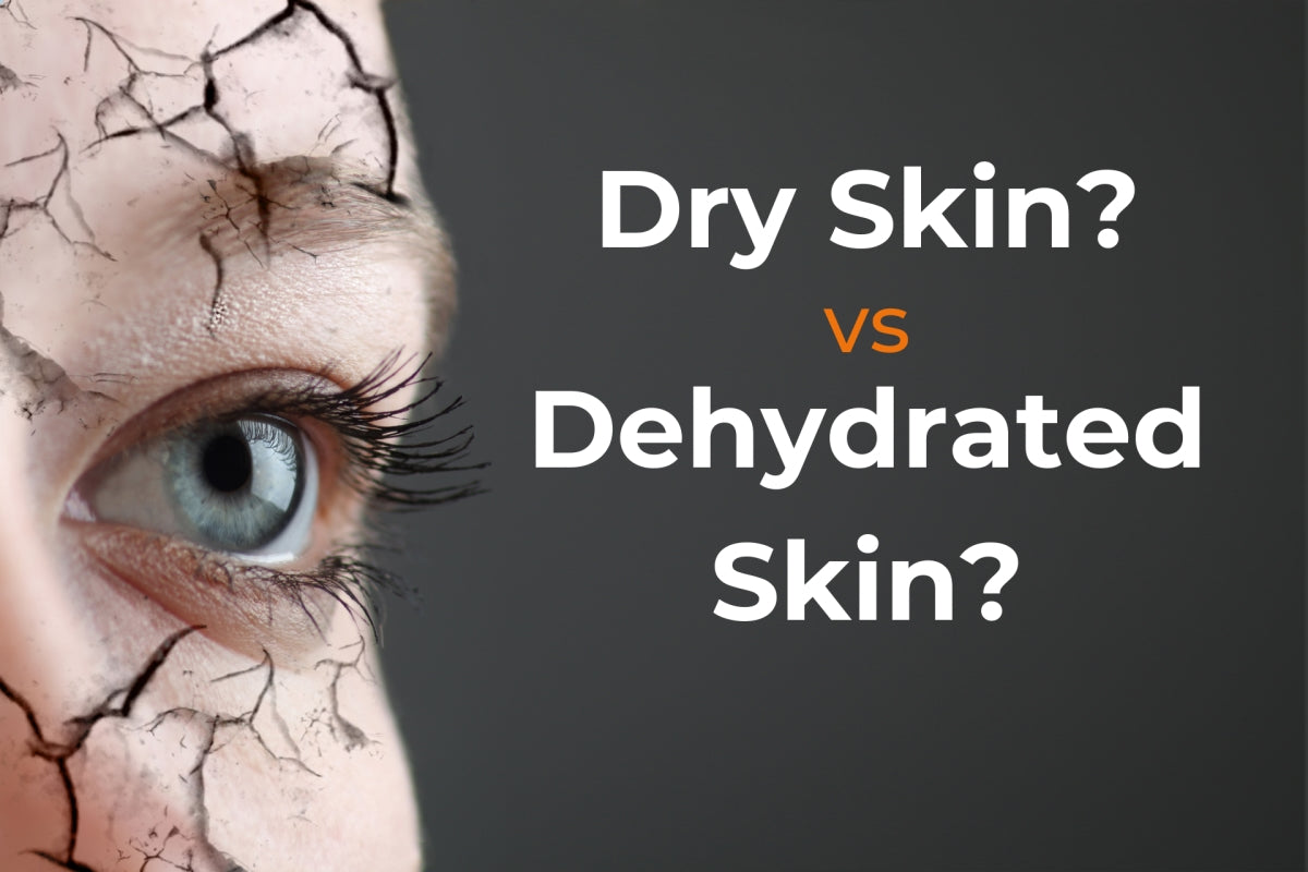 dry skin vs. dehydrated skin