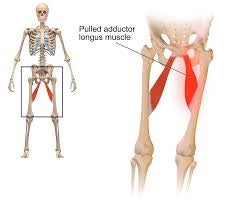 adductor muscles groin strain
