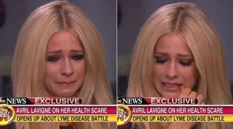Avril Lavigne suffered from Lyme disease