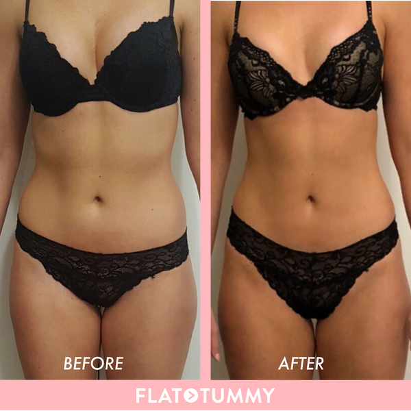 Flat Tummy Before and After
