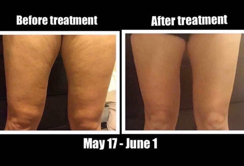 Dermatic (Cellulite Cream)