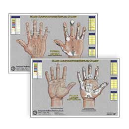 HAND THERAPY CHARTS