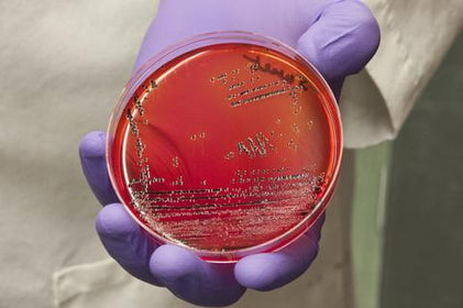 Beware of Deadly Superbugs When You Travel